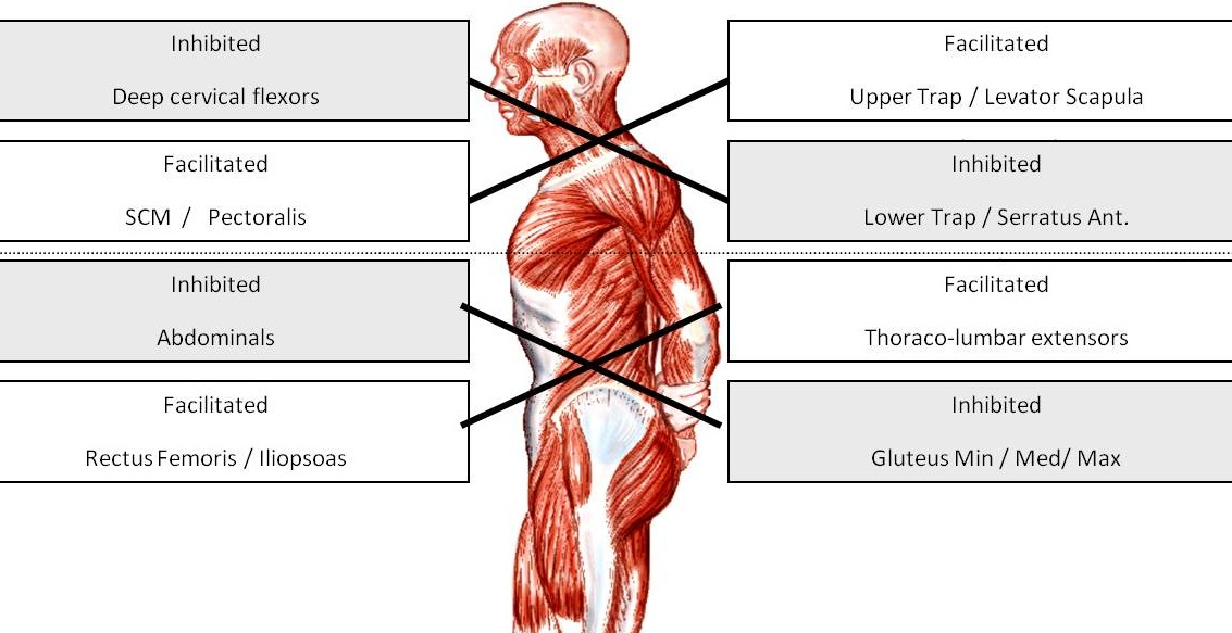 Upper and Lower Crossed Syndrome - True Form Chiropractic